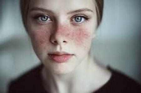 Lupus effect